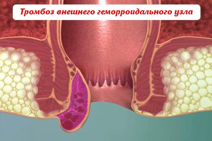 тромбоз внешнего геморроидального узла