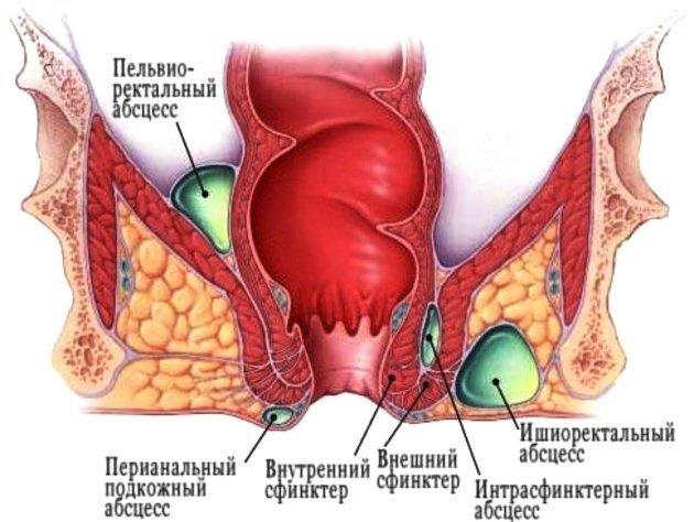 клинические проявления парапроктита