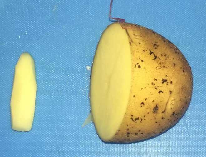 использование картофельных свечей при лечении парапроктита