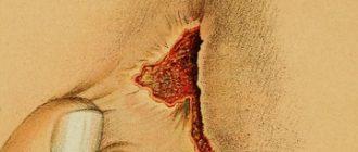 заболевание парапроктит