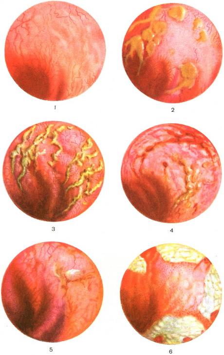 эндоскопическое обследование катарального проктита