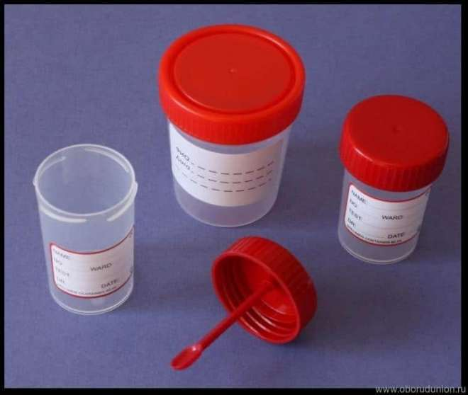 Зачем сдают анализ кала на дисбактериоз thumbnail