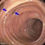 дивертикулы в кишечнике